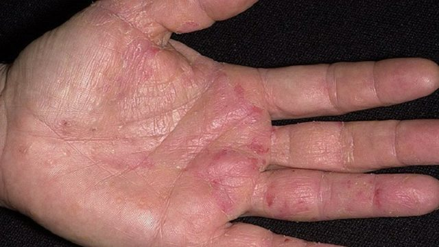 Чем лечить экзему на руках: ладонях, пальцах и кистях?