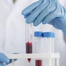 С-реактивный белок (СРБ) повышен - причины, норма в крови