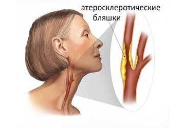 Дуплексное сканирование сосудов головы и шеи: подготовка к исследованию и результаты