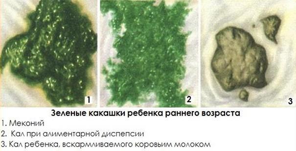 Зеленый кал у грудничка на грудном и искусственном вскармливании