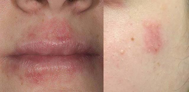 Себорейный дерматит на лице: лечение, фото, симптомы, диета