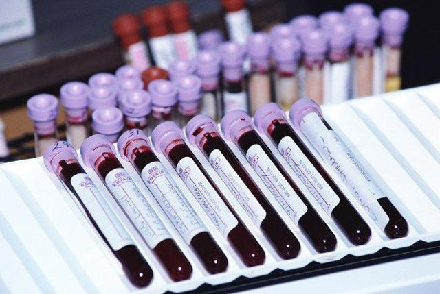 Анализы крови на гормоны - когда и как сдавать правильно