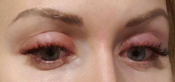 Аллергия на нарощенные ресницы: что делать, симптомы и лечение