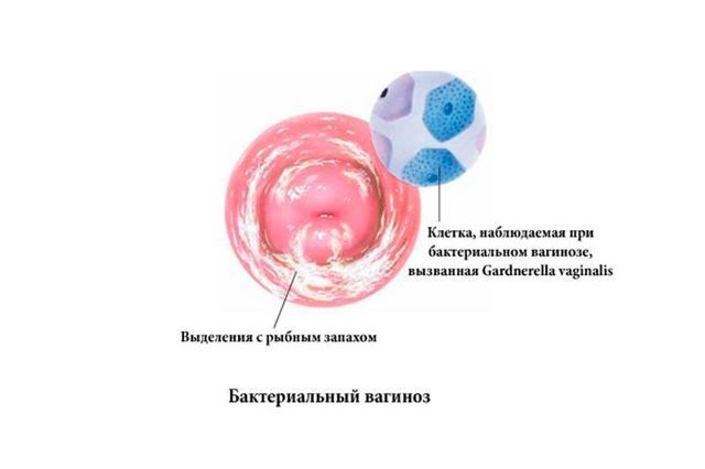 Бактериальный вагиноз: чем лечить, симптомы, свечи при беременности, профилактика