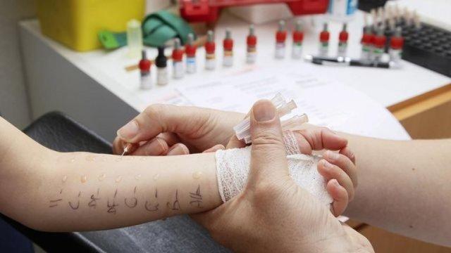 Скарификационные пробы на аллергию: показания к применению