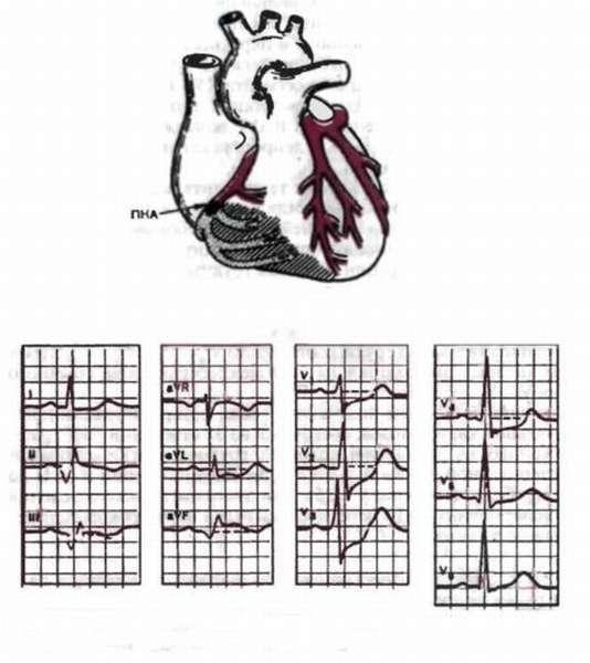 Инфаркт задней стенки сердца: возможные последствия и эффективные методы терапии