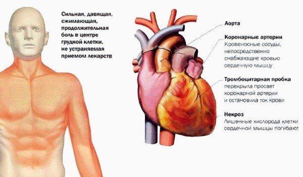 Боль при инфаркте миокарда: основные симптомы, особенности и методы лечения