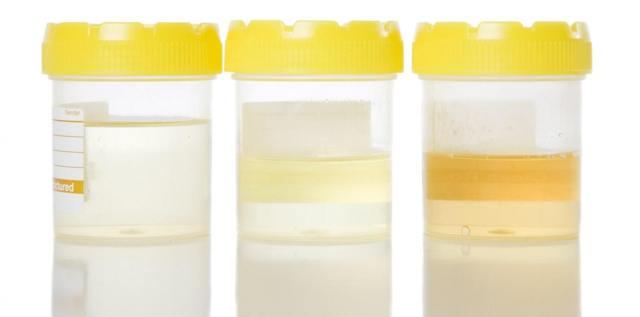 Эритроциты в моче повышены: причины у ребенка, гематурия, эритроцитурия