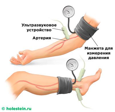 Диагностика атеросклероза сосудов: методы обследования