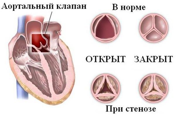 Аортальный порок сердца: причины и способы лечения, диагностика заболевания