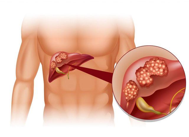 Щелочная фосфатаза в крови: норма, причины повышения и понижения