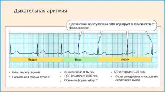 Аритмия сердца при беременности: возможная угроза на ранних и поздних сроках- kardiobit.ru