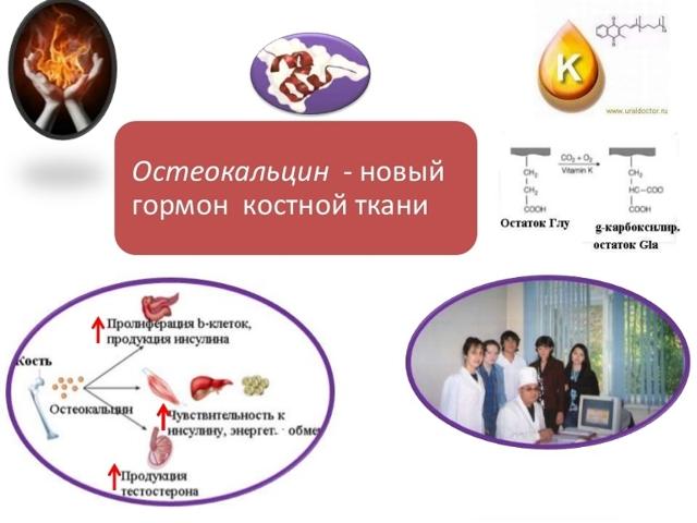 Остеокальцин - понижен, повышен, норма в анализе крови
