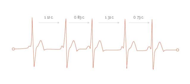 Врождённый порок сердца (ВПС): дефект в структуре сердца, способы лечения