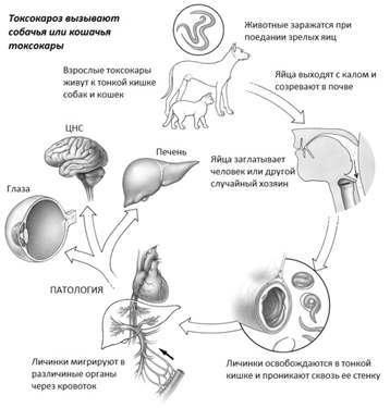 Токсокароз у взрослых, симптомы и лечение токсокар у детей