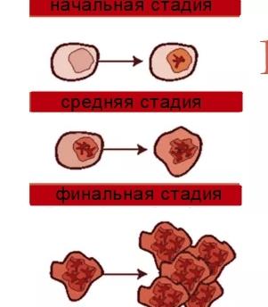 Хронический лейкоз крови: основные симптомы и лечение