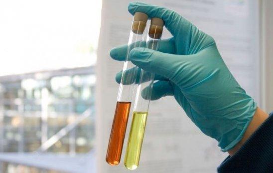 Фосфаты (аморфные кристаллы) в моче, трипельфосфаты в анализе
