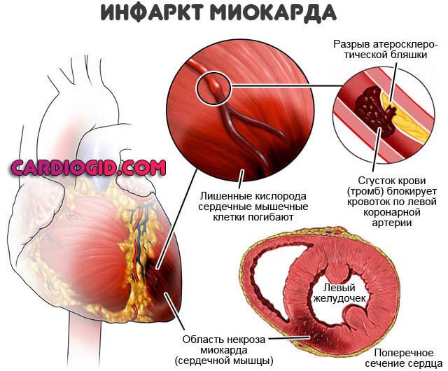 Признаки инфаркта у мужчин: первые симптомы и оказание первой помощи
