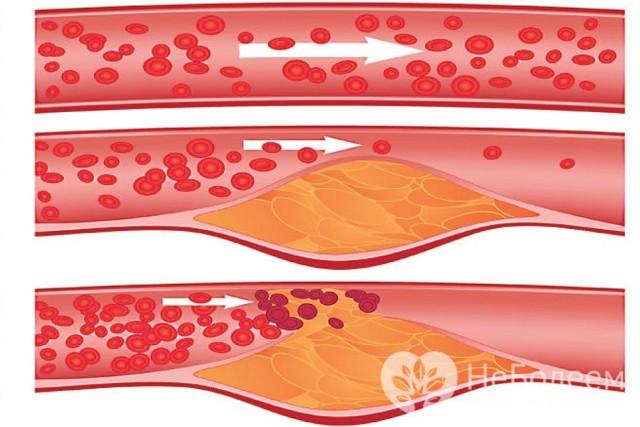 Атеросклероз сосудов головного мозга: симптомы и лечение заболевания