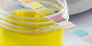 Ярко-желтая моча у мужчин, женщин: причины изменения цвета