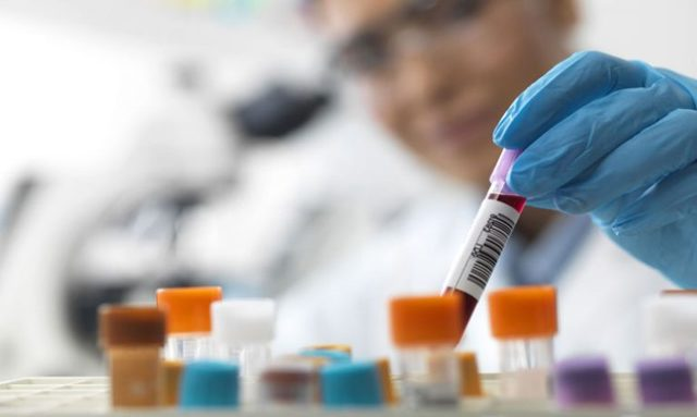 Анализ крови на ПСА - что это? Подготовка к сдаче, норма и расшифровка