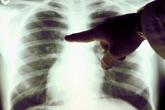 Аневризма грудной аорты: классификация, клинические рекомендации, диагностика и лечение