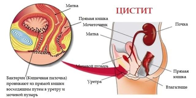 Эритроциты в моче повышены: причины и нормативное значение