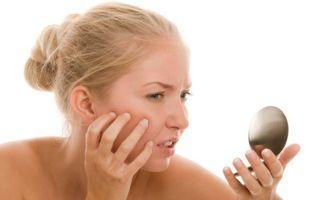 Экзема на лице: причины возникновения и способы лечения