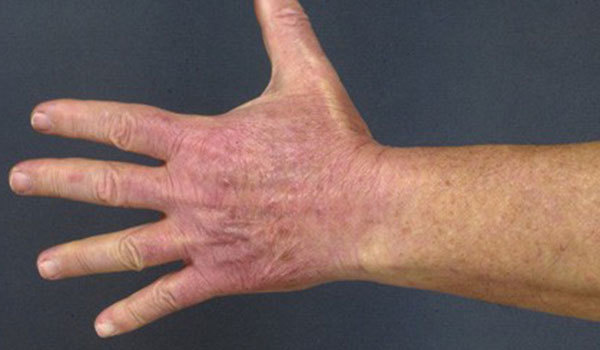 Раздражение на коже рук: от моющих средств, холода, на пальцах
