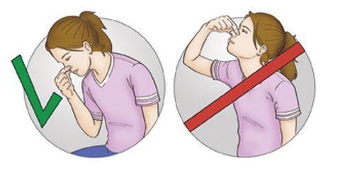 Носовое кровотечение: лечение, причины у взрослых и детей