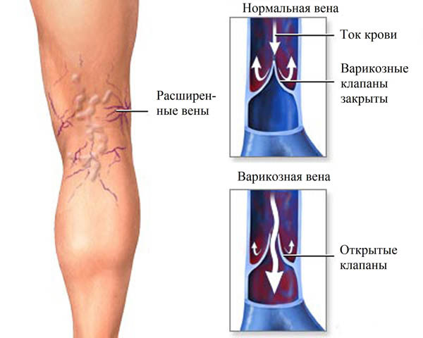 Как лечить заболевания сосудов: симптомы болезни, диагностика и лечение