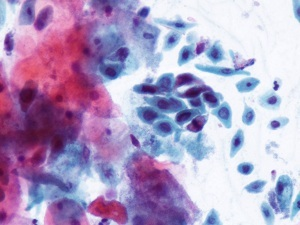Причины появления белых хлопьев в моче: лечение и диагностика