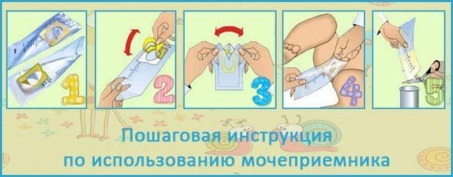 Анализ мочи по Нечипоренко: норма у детей, подготовка к сдаче