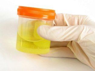 cахар в моче при беременности: причины, что означает повышенный уровень у женщин, анализ на глюкозу, почему обнаруживается, мнения с форумов, таблица норм