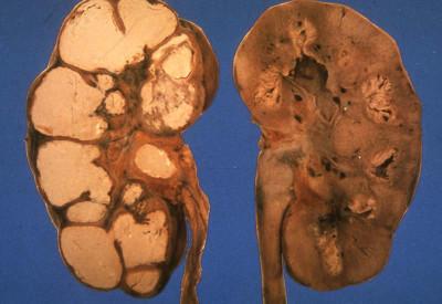Почему появляется осадок в моче: диагностика и дальнейшее лечение